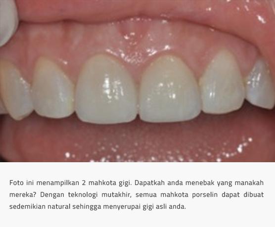 Mahkota Gigi Tiruan Dan Jembatan Gigi The Implant And Oral Surgery