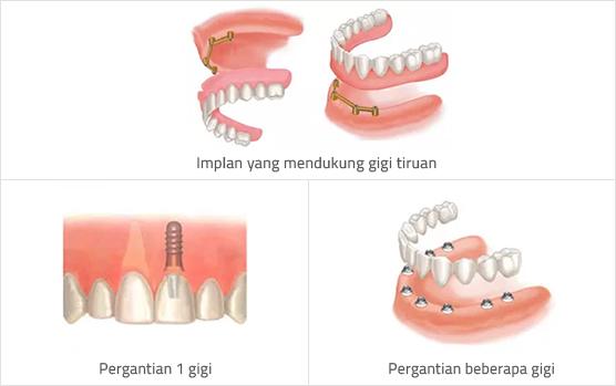 Implan Gigi  6081e331a2