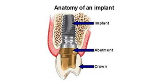 Implan gigi(gigi tanam) adalah sekrup titanium yang ditanam pada rahang gigi  berfungsi untuk menggantikan bagian akar gigi. Penanaman dilakukan di  tulang ... 577d4f1450