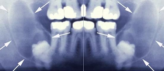 Pencabutan Gigi Bungsu The Implant And Oral Surgery Centre