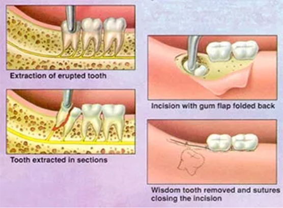 An Incision Is Made In The Gum Tissue And Reflected So That Tooth Can Be Seen If Bone Covering It May Need To Removed